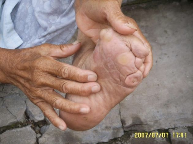 This woman's mother did not properly bind her feet.