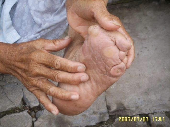 """This woman's mother did not properly bind her feet. """"That is, her mother lacked expertise so that the feet did not achieve the desired shape, but were nonetheless painfully deformed,"""" Bossen explained."""