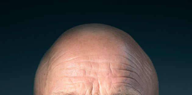 Scientists Could Treat Baldness After Discovering What Causes