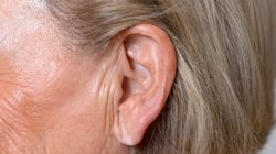 How Having A Creased Earlobe Could Predict Your Stroke