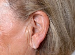 How Having A Creased Earlobe Could Predict Your Stroke Risk