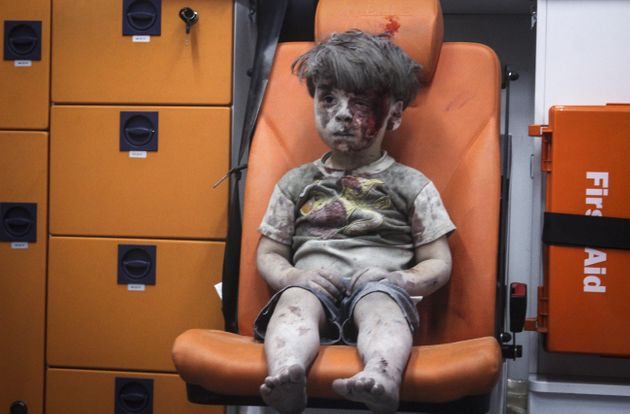 The image of Omran Daqneesh became an iconic