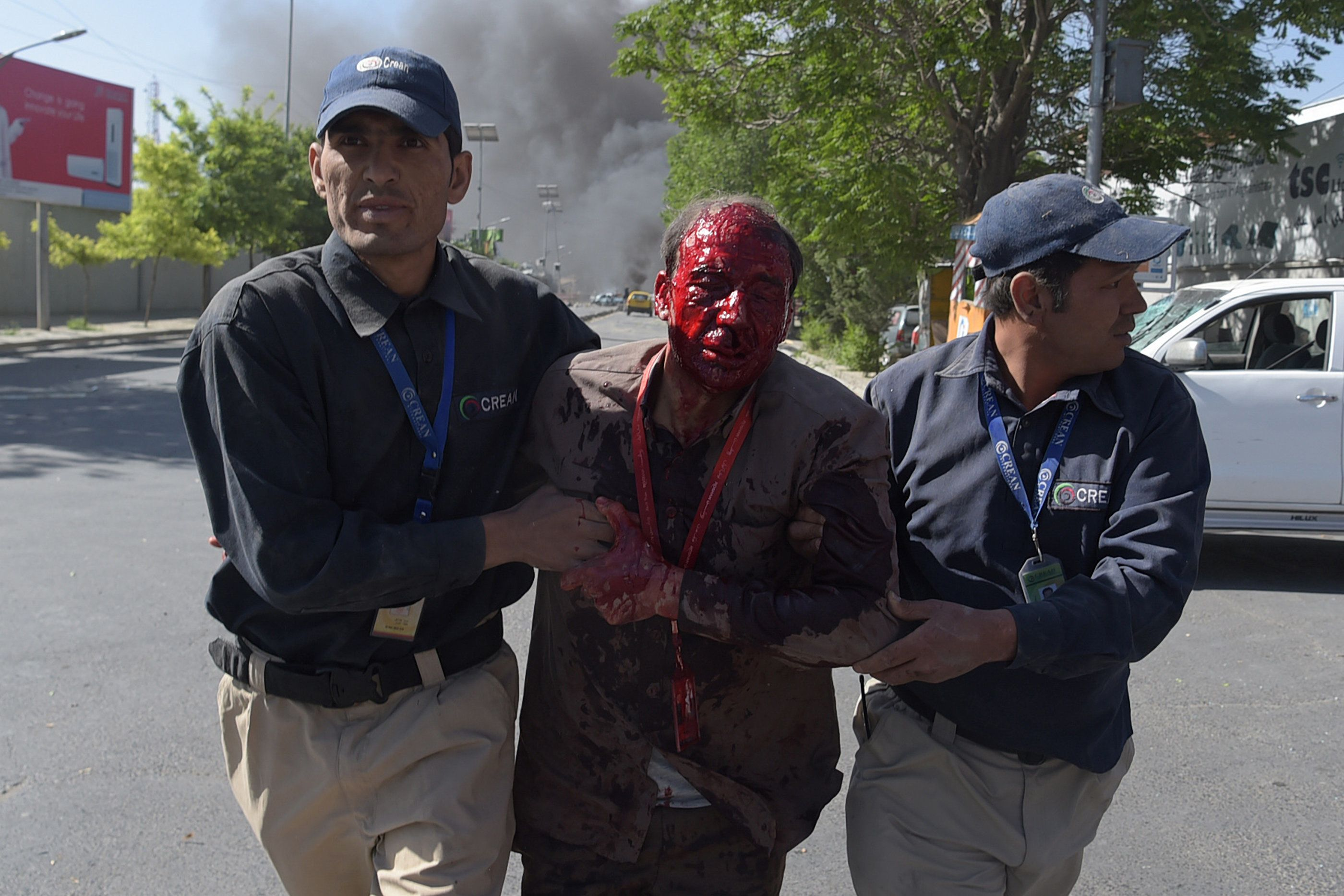 A wounded man is helped after a massive blast rocked Kabul's diplomatic quarter on Wednesday.