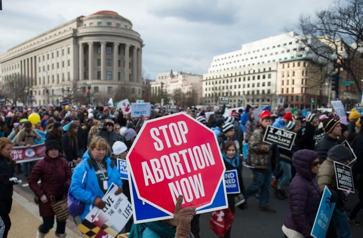 moral standing on abortion The ethical issues of abortion  one such moral issue is abortion this paper establishes the reasons for and against abortion and finally taking a stand on the.