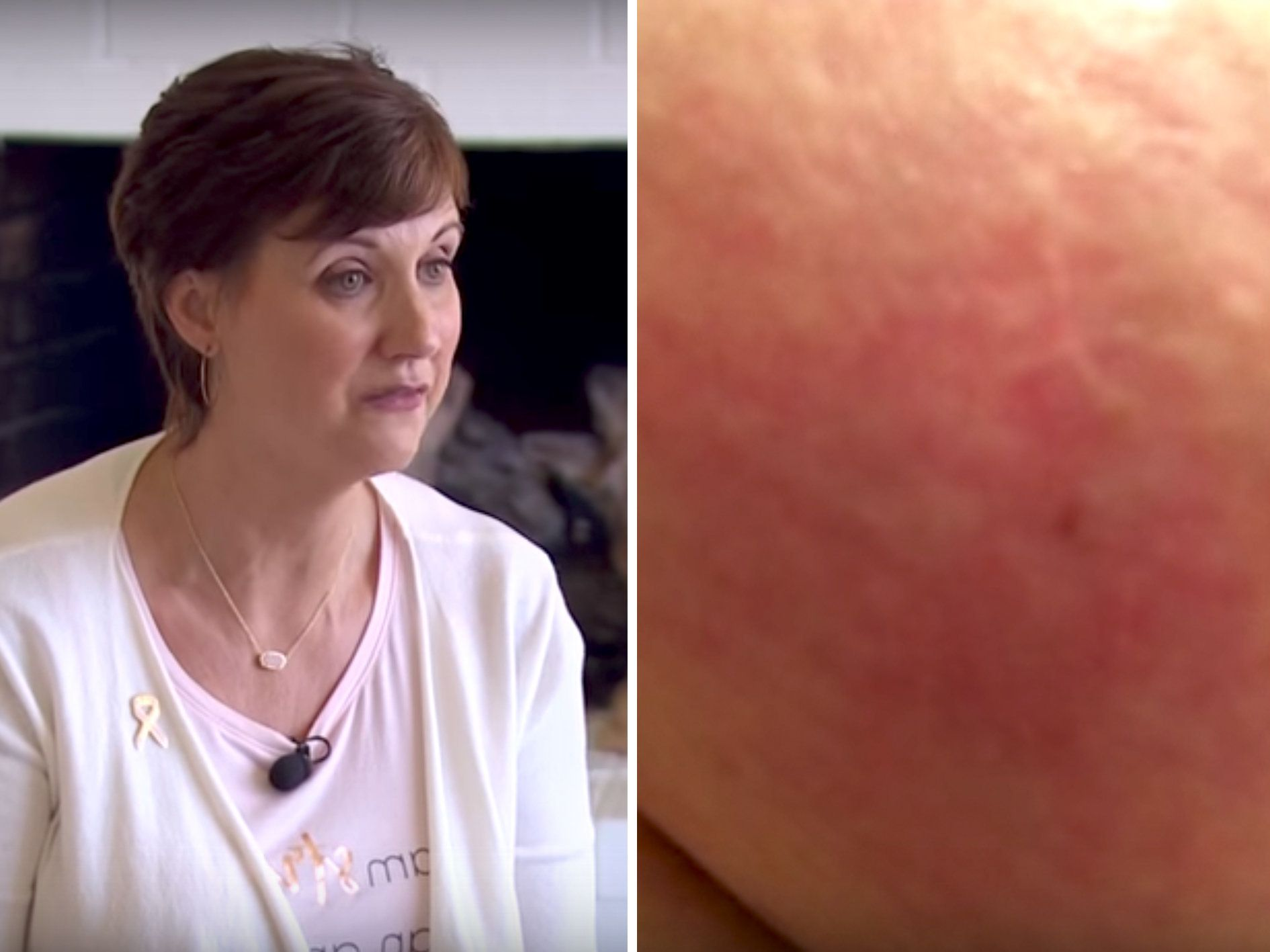 Woman Shares Photo Of Inflammatory Breast Cancer Symptom In Hope It'll Save