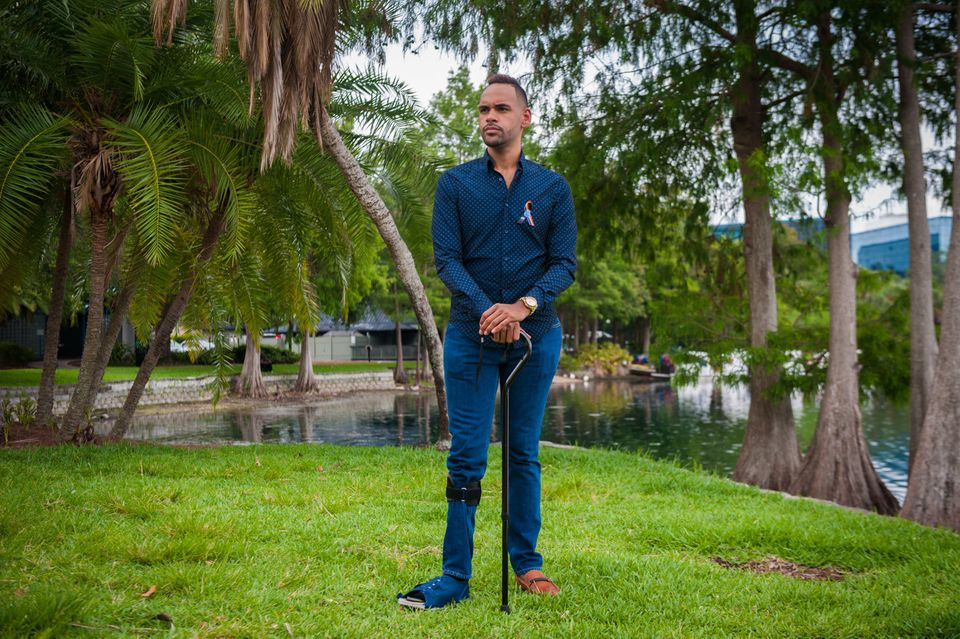 Angel Colon a survivor of the Pulse shooting poses for a photograph at Lake Eola Park in Orlando Florida...