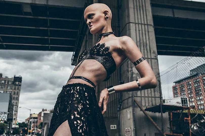 「与えられた自分の体に満足する」世界で大反響、遺伝性疾患のモデルが魅せる(画像集)