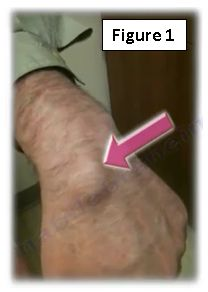 Ganglion Cyst of the Wrist   HuffPost