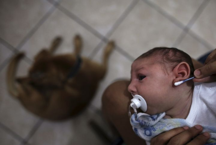 Pregnant women infected with Zika are more likely to give birth to babies with microcephaly, a rare defect that leads to smal