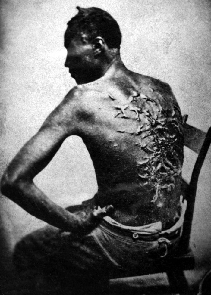 """Gordon, or """"Whipped Peter,"""" escaped captivity and ran 80 miles to join the Union Forces in Baton Rouge, Louisiana. This photo"""