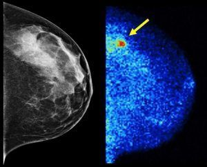 <p>According to a Mayo Clinic study published in January 2015, molecular breast imaging or MBI (right) detected 3.6 times as many invasive cancers as digital 2-D mammography (left).  About half of screening-age women have dense breast tissue, which digital mammography renders the same whitish shade as tumors.</p>
