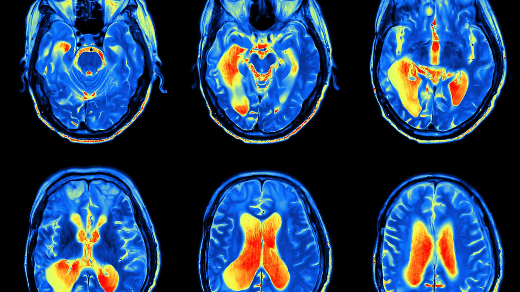 Childhood Brain Injury Tied To Adult Anxiety, Depression ...