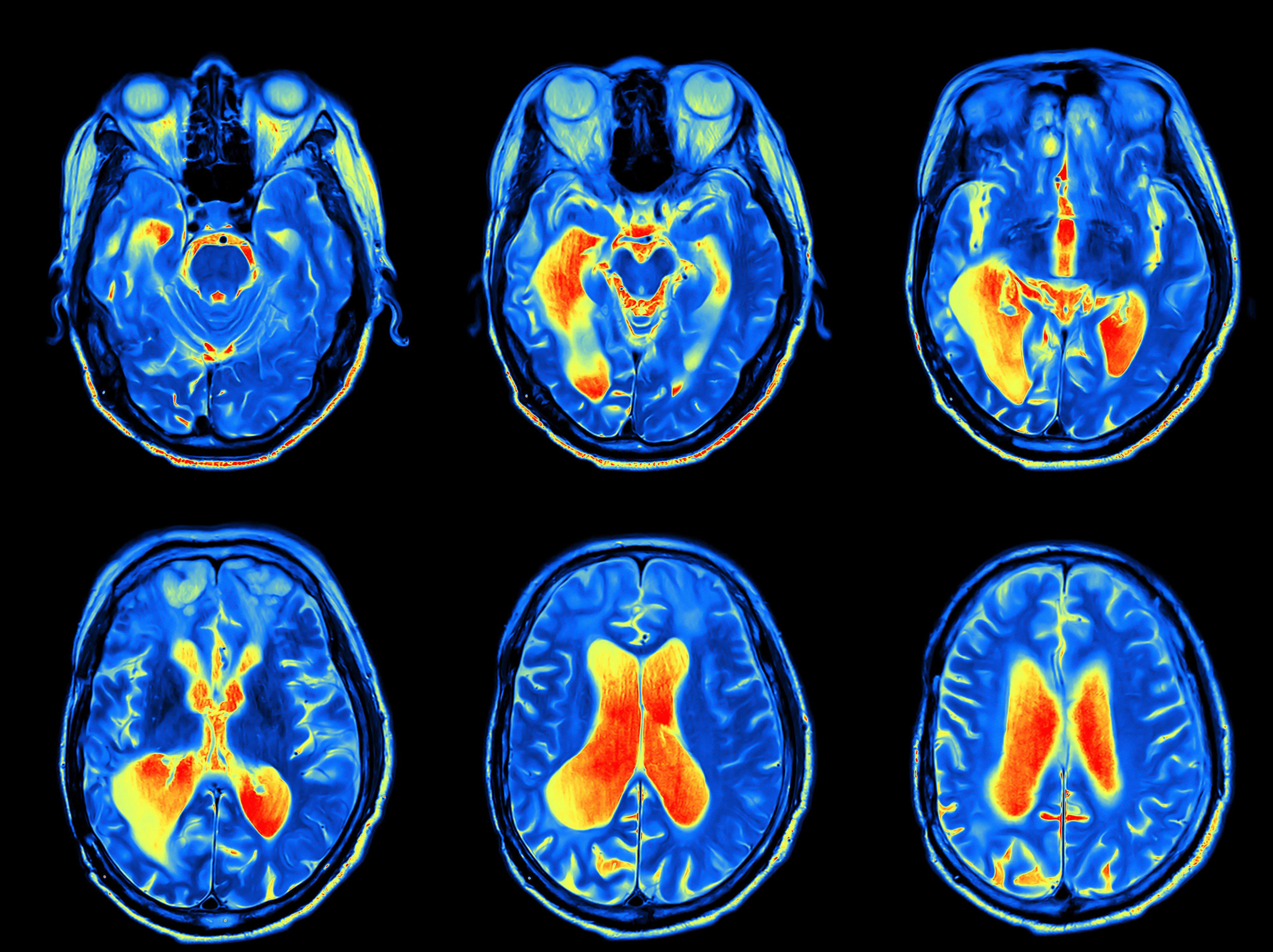 MRI scan image of brain