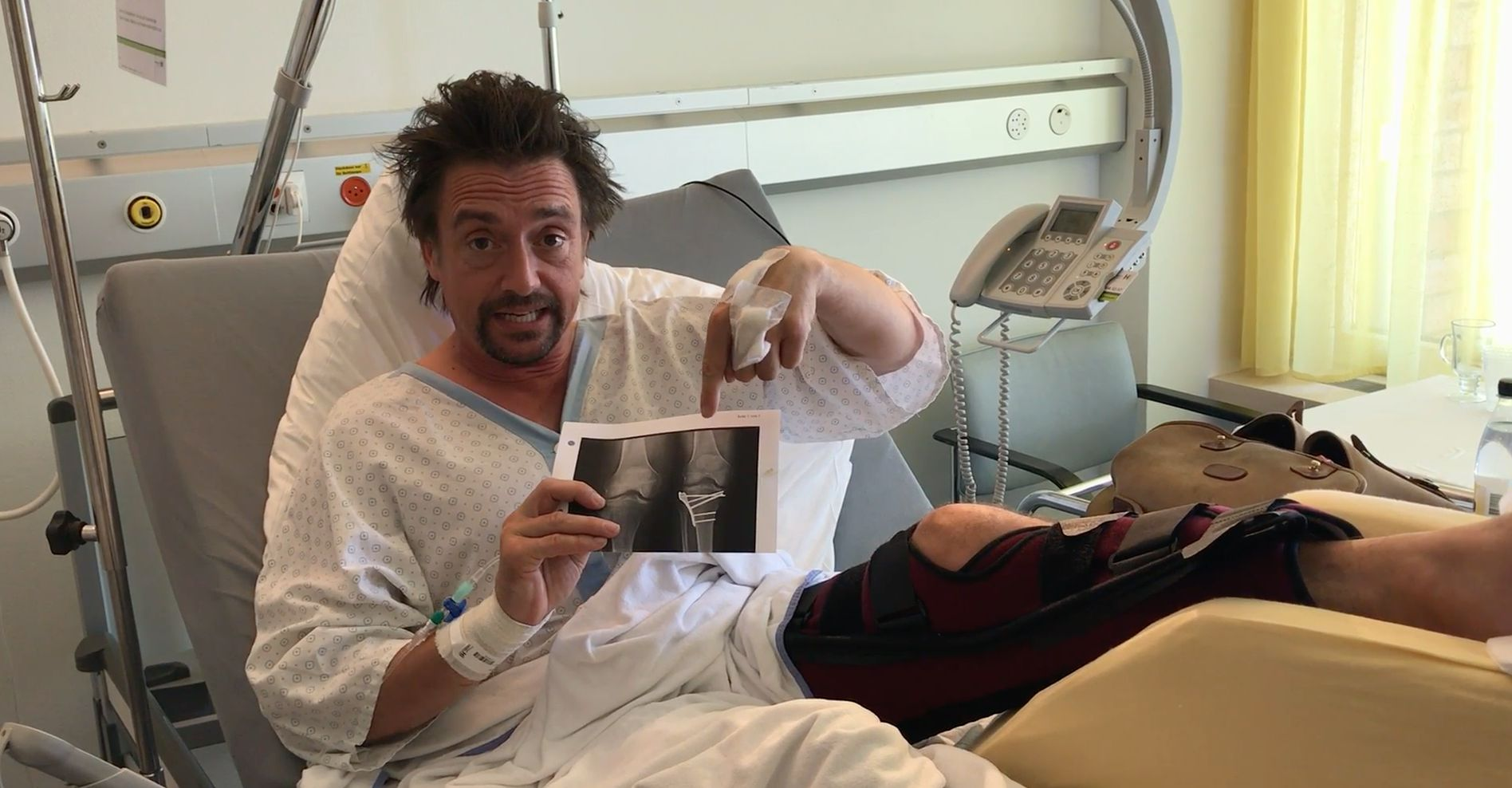 Richard Hammond Apologises To His Wife And Family In Video Message From Hospital