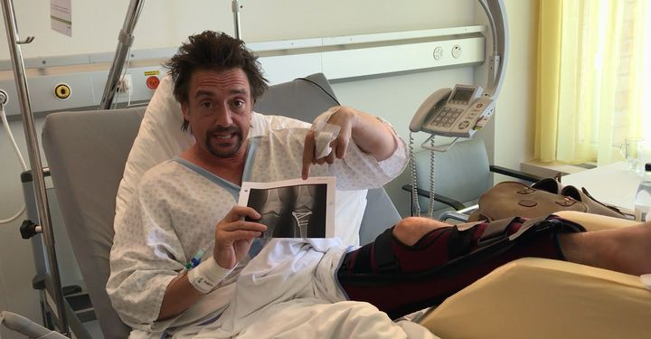 Richard shows fans his x-rays