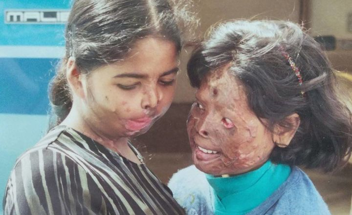 Nurjahan Khatun, right, survived an acid attack at age 9. The attacker was a man who was outraged that Nurjahan's 13-year-old