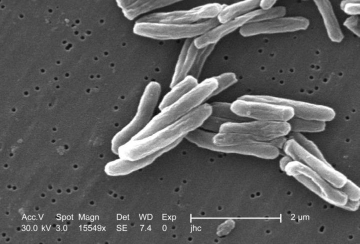 Under a high magnification of 15549x, a details of the Mycobacterium tuberculosis bacteria.