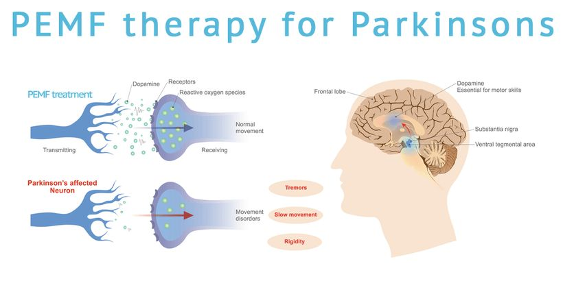 Pulsed Electromagnetic Field Therapy (Magnetic Stimulation Therapy) for Parkinson's Disease