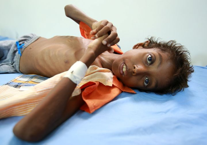 More than 2 million children are acutely malnourished in Yemen, according to the United Nations.