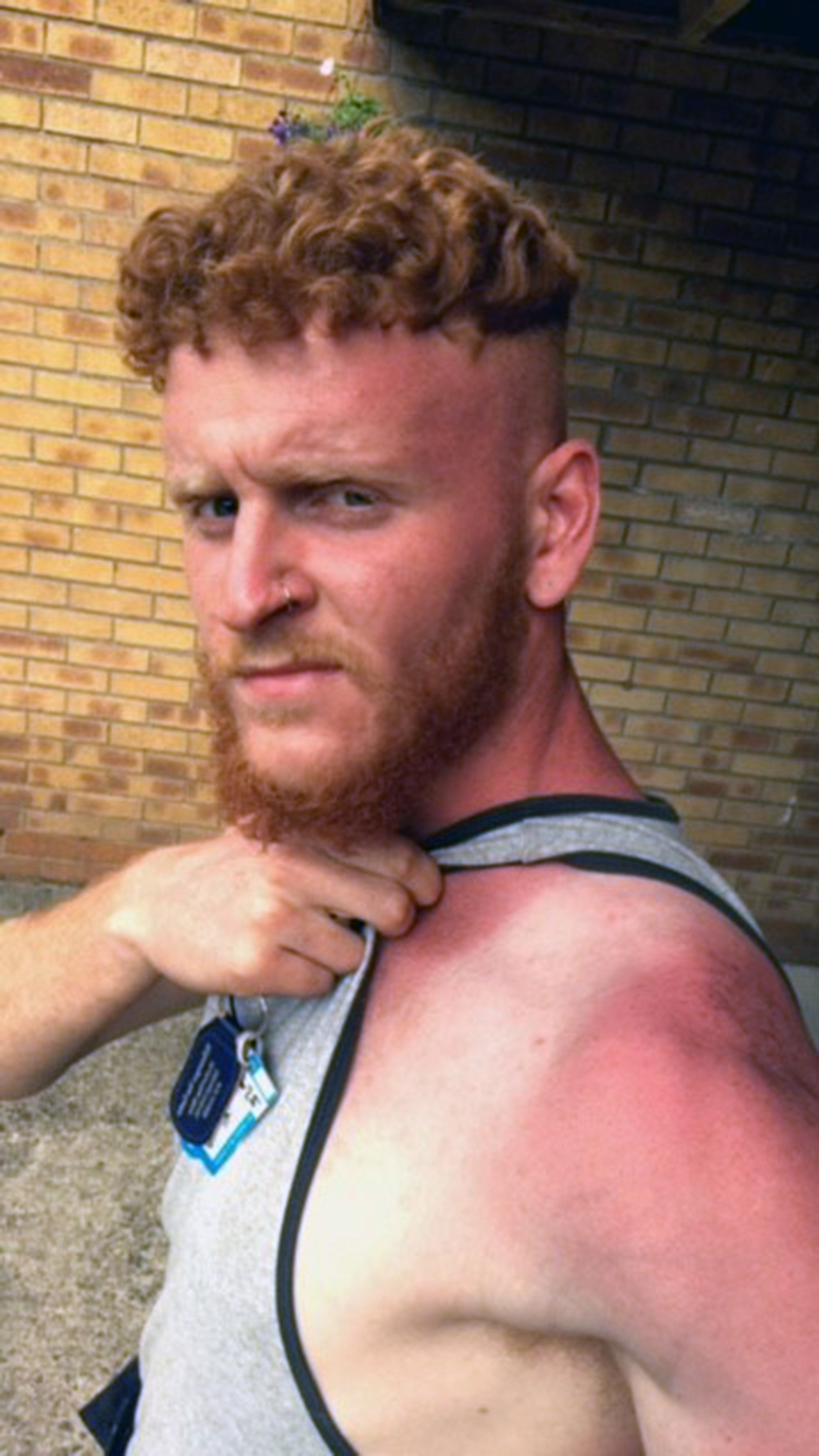 Gardener Warns Of Sun Dangers After Being Left With Second-Degree