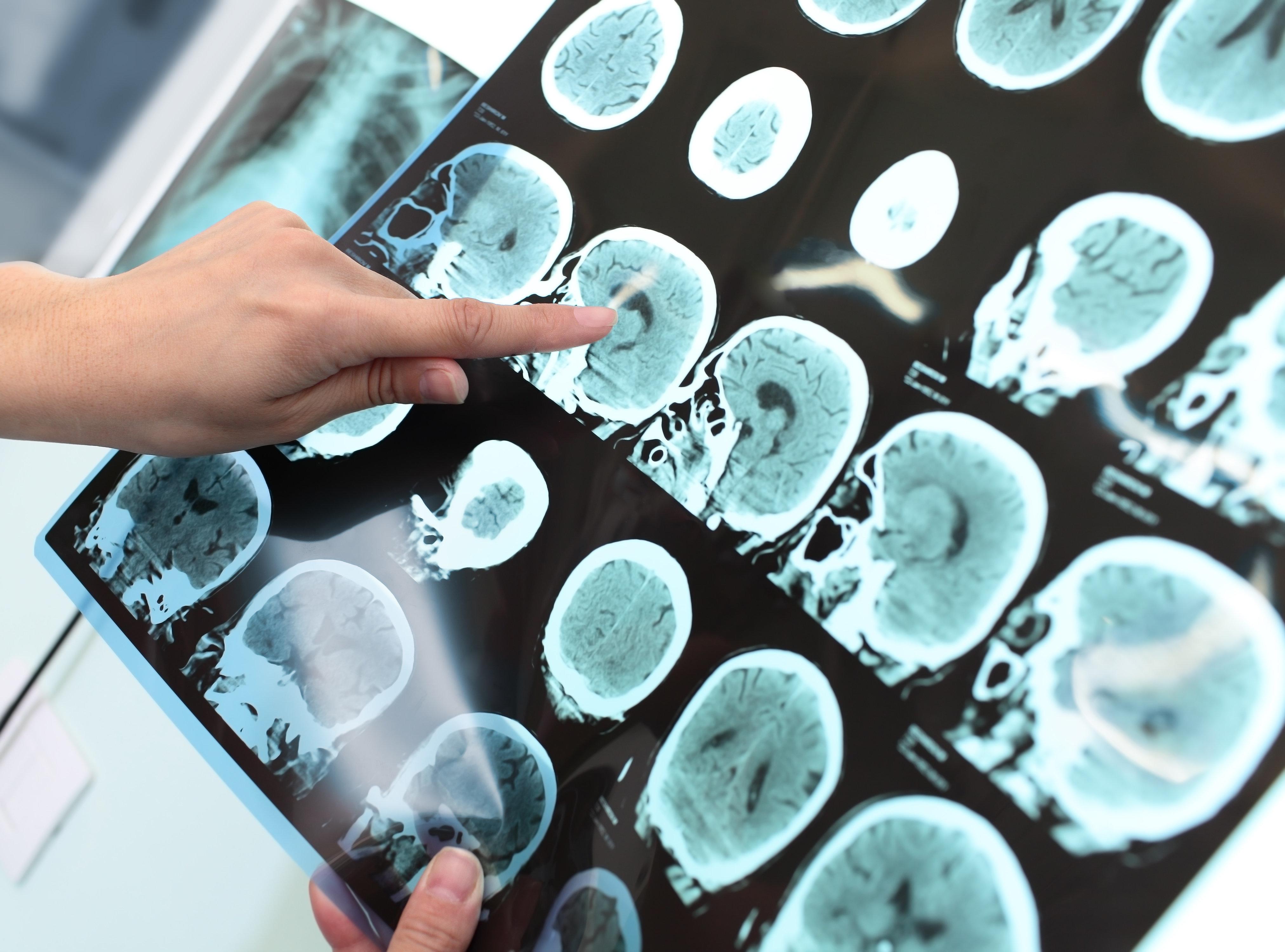Anti-Epilepsy Drug Restores Normal Brain Activity In Alzheimer's