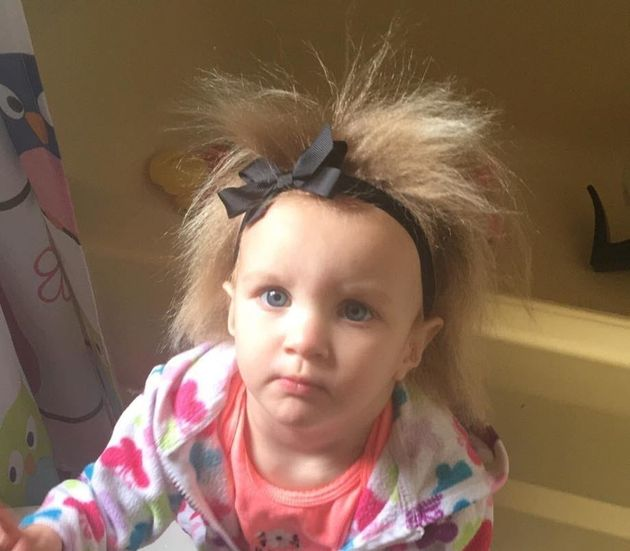 Phoebe Brasswell, of Smithfield, North Carolina, was born with a rare condition that makes her hair