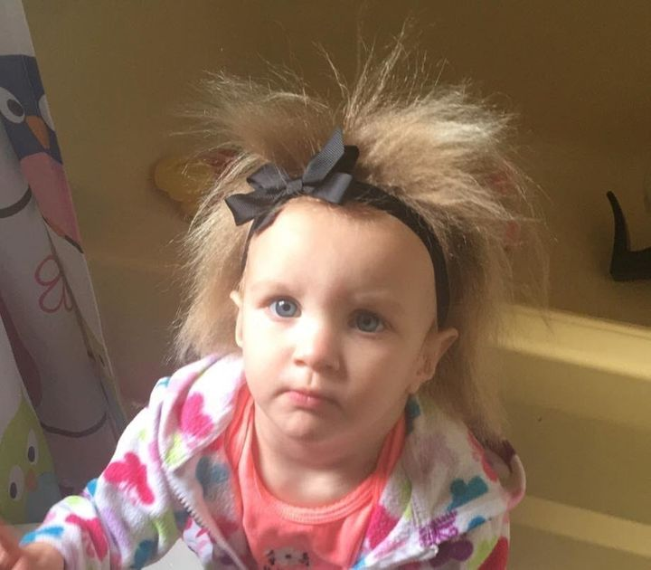 Phoebe Brasswell, of Smithfield, North Carolina, was born with a rare condition that makes her hair untamable.