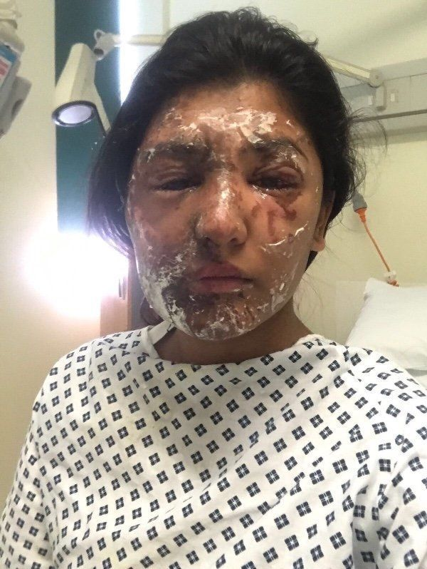 Khan suffered burns to her arms, legs, face and shoulder and will need skin
