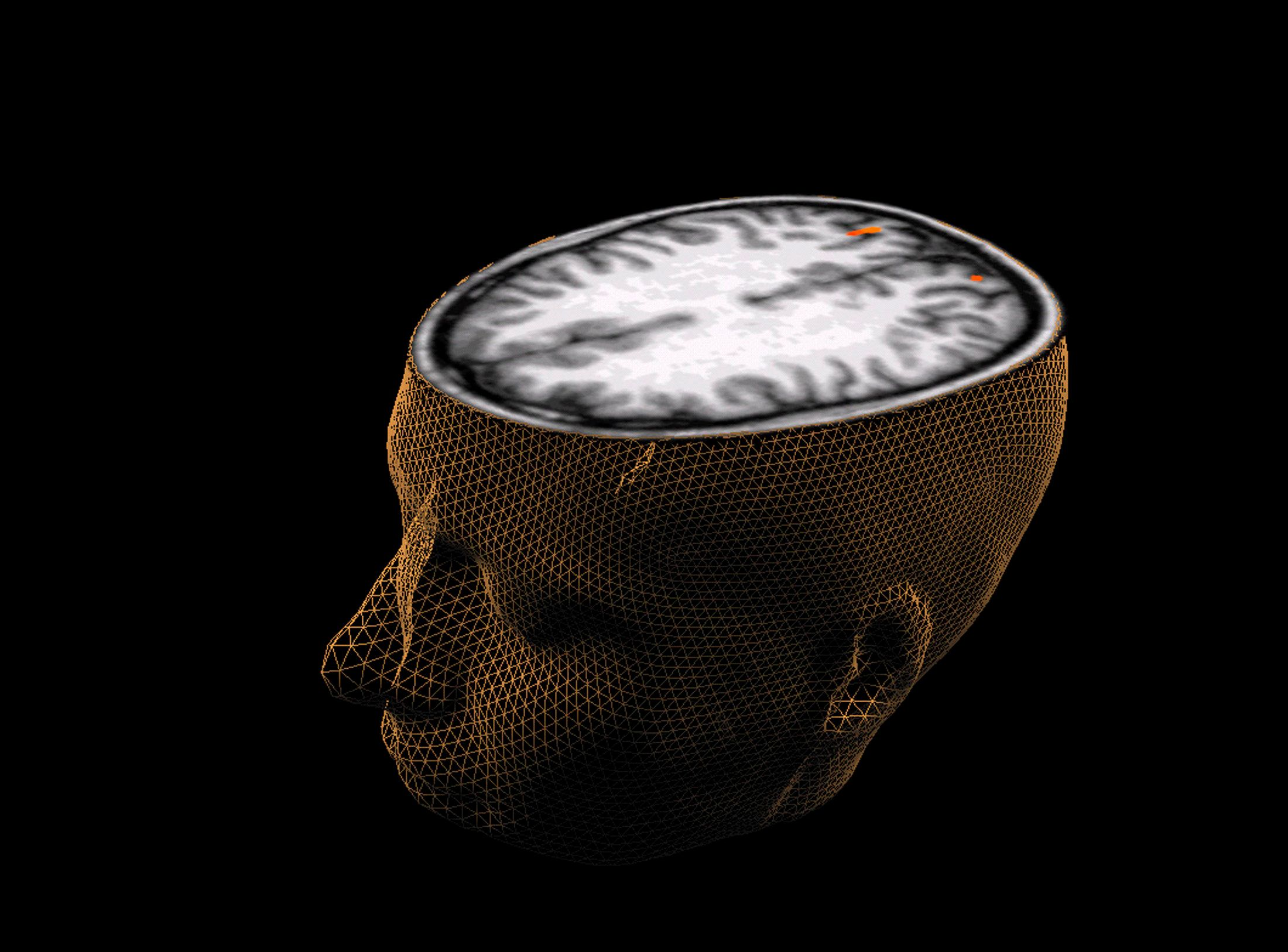 The Brains Of Psychopaths May Be Wired Differently Than Yours Or