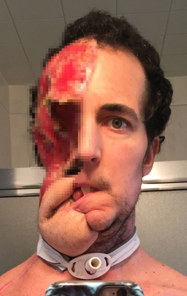 Eventually the tumour was cut out, but his body rejected multiple efforts to rebuild his features and...