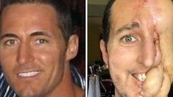 New Hope For Man Who Lost Half His Face To
