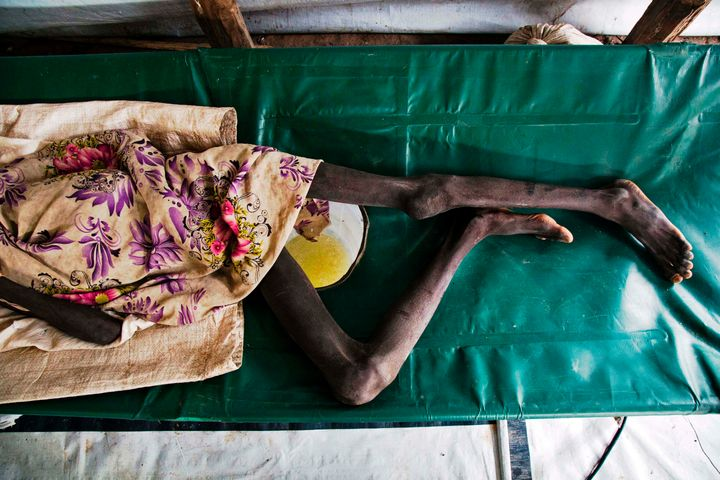 Duor Jany, 11, seriously affected with cholera, lays on a bed, at a clinic in Lankien, Jonglei, South Sudan on July 5, 2