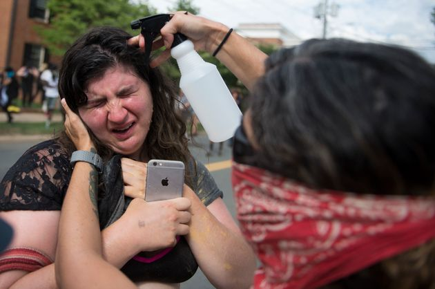 <strong>A protester has her eyes washed after being tear gassed by police following a Ku Klux Klan