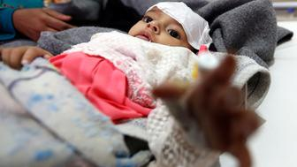 A Yemeni infant suspected of being infected with cholera receives treatment at Sabaeen Hospital in Sanaa, on June 13, 2017. Six weeks into the second outbreak of the deadly disease in less than a year, at least one patient checks in at Sabaeen every 60 seconds -- a level of emergency that overwhelms staff. / AFP PHOTO / Mohammed HUWAIS        (Photo credit should read MOHAMMED HUWAIS/AFP/Getty Images)
