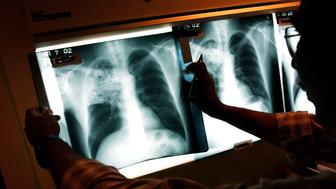 NEW YORK- NOVEMBER 27:  A doctor examines the x-rays of a tuberculosis (TB) patient at a TB clinic Novmeber 27, 2002 in Brooklyn, New York. Healthcare workers around the country oversee patients in a program called Directly Observed Therapy (DOT) that ensures carriers of the tuberculosis bacteria take their medication. Tuberculosis is a contagious disease of the lungs that is spread through the air and kills around 2 million people annually, mainly in third world countries. It is relatively easy and affordable to treat, with a six-month series of drugs costing around 10 dollars. While the number of TB cases in the United States has dropped in recent years, the disease is still particularly strong among the foreign-born, the homeless and impoverished contributing to the deaths of thousands of Americans yearly. As of 2000, over 16,000 Americans have contracted tuberculosis.  (Photo by Spencer Platt/Getty Images)