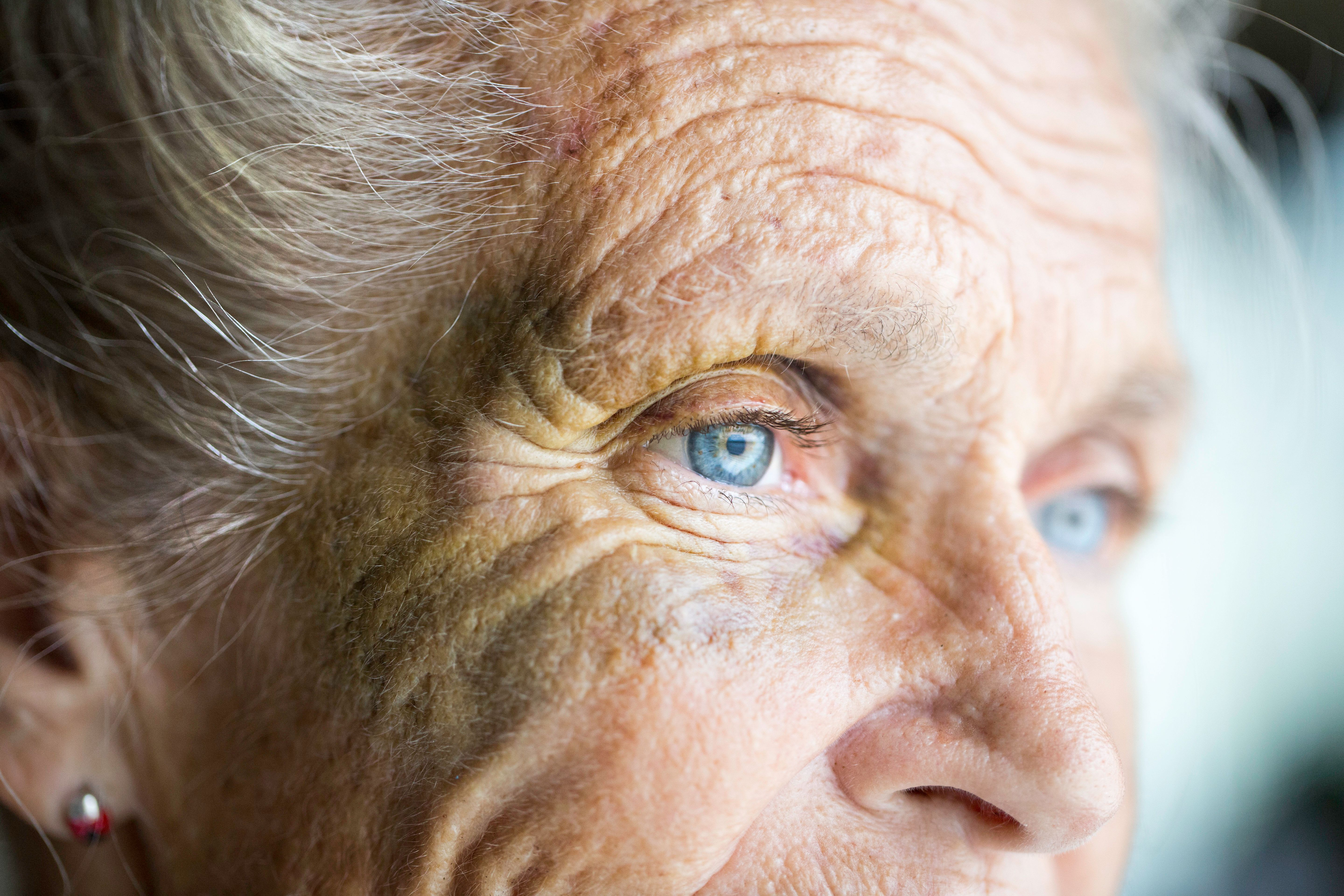Scientists Identify Visual Symptoms That Could Mark The Start Of