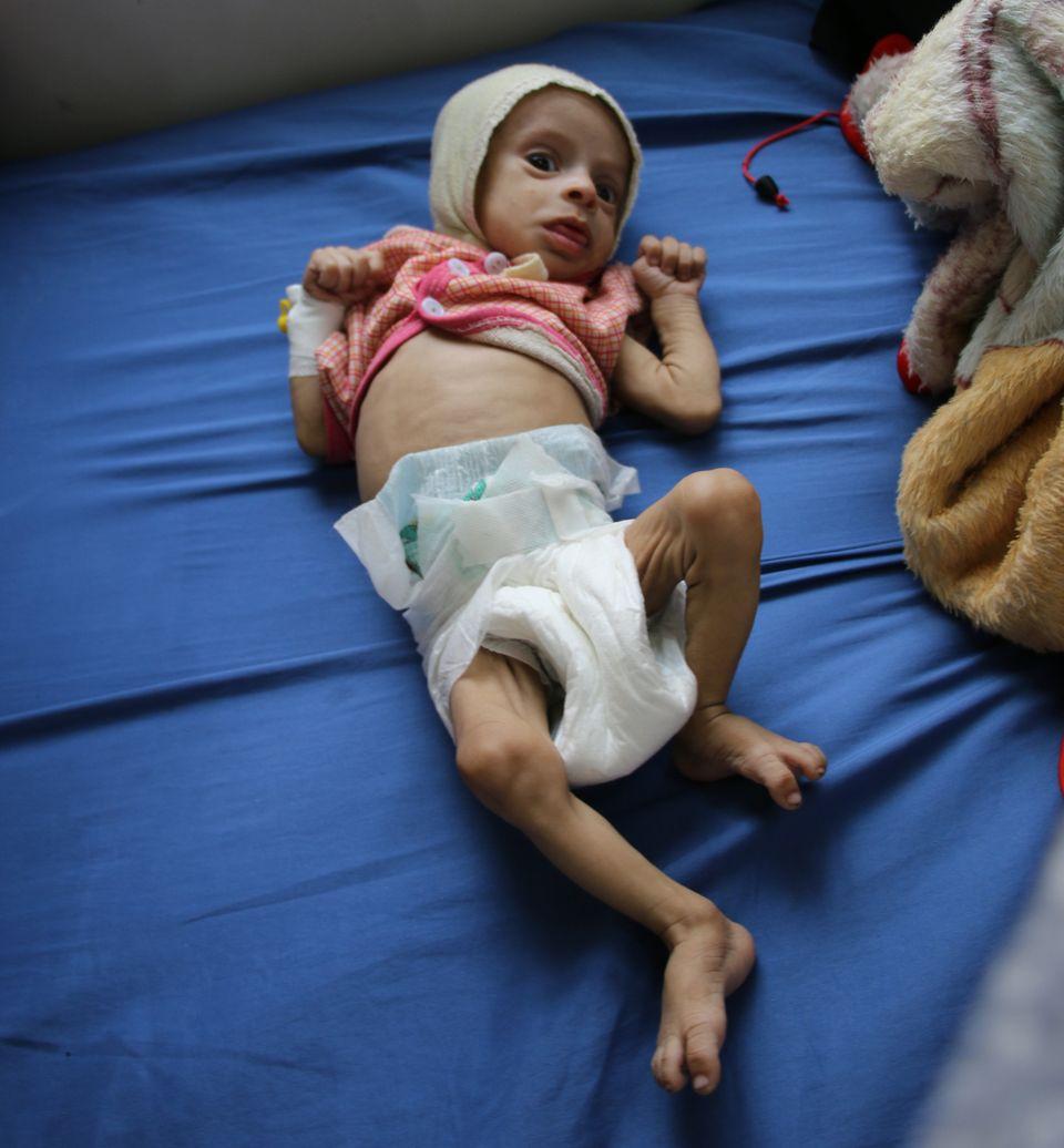 Ishraq Ali, de 3 meses, recebeu o diagnóstico de desnutrição
