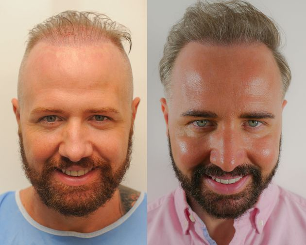 Before and after: Chris underwent another hair transplant ahead of his big