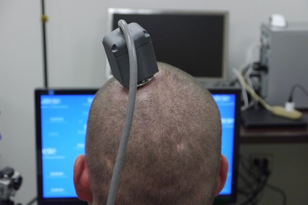 Ian Burkhart, 23, is connected to a computer via this port.A cable runs to a computer carrying...