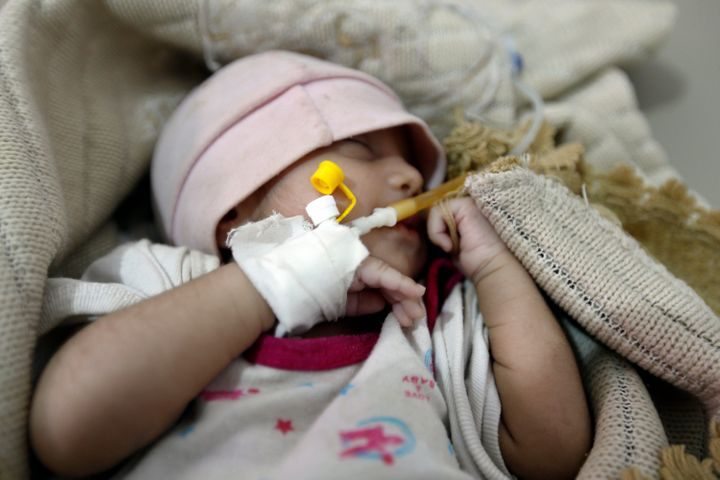 A Yemeni infant suspected of being infected with cholera receives treatment at Sabaeen Hospital in Sanaa, on June 13, 2017.&n