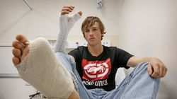 Man Has Big Toe Removed To Replace Thumb Ripped Off In