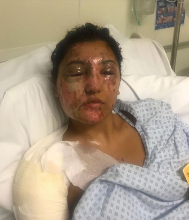 Resham Khan recovering in hospital after being doused with acid on June