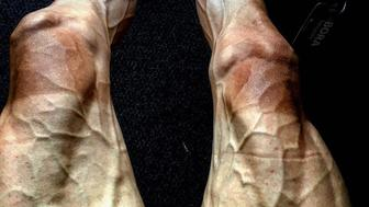 Pawel Poljanski shared a photo of his legs following the 16th stage of the Tour de France