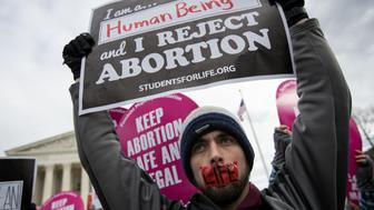 WASHINGTON, DC - JANUARY 27: An anti-abortion advocate rallies outside of the Supreme Court during the March for Life, January 27, 2017 in Washington, DC. This year marks the 44th anniversary of the landmark Roe v. Wade Supreme Court case, which established a woman's constitutional right to an abortion. (Photo by Drew Angerer/Getty Images)