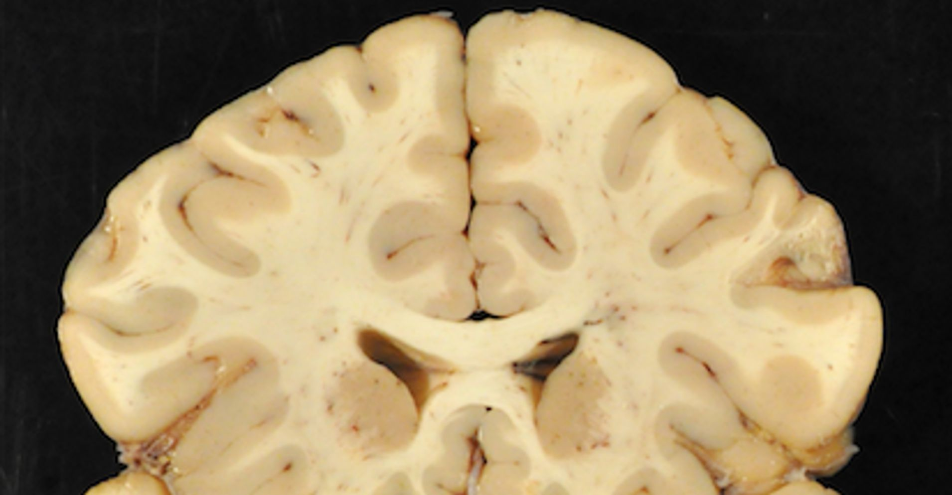 99 Percent Of Studied NFL Brains Diagnosed With CTE, Researchers Say