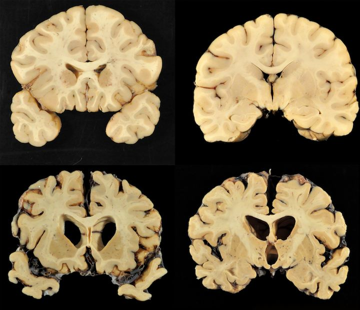 A number of the brains studied by doctorAnn McKee and her researchers.Almost all of the brainsMcKee has stu