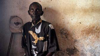DRC river blindness