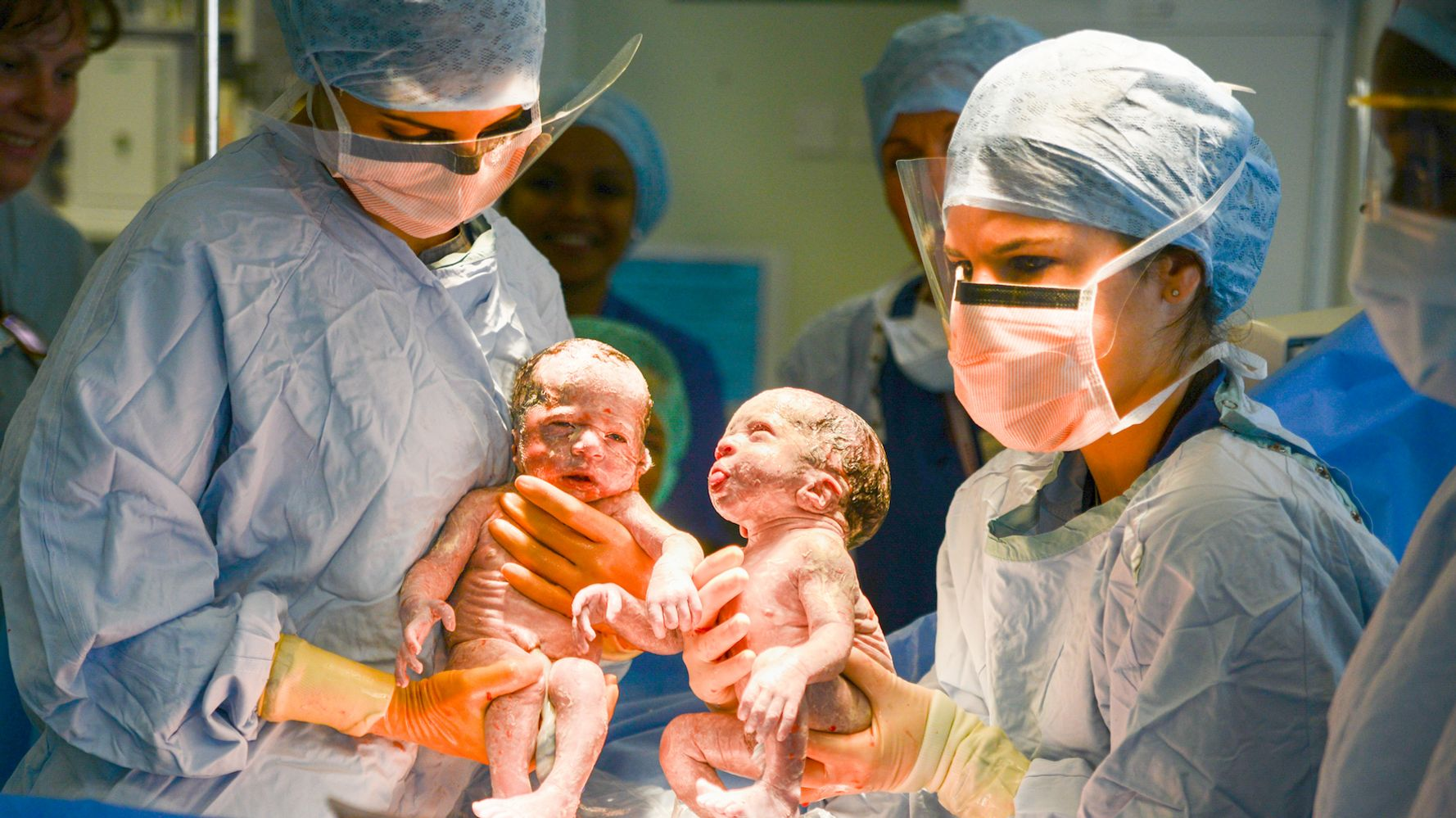 The World's First Twin Babies Measured Using Twin Pregnancy Growth ...