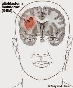 Glioblastoma, a rare but aggressive cancer, represents 15% of all brain tumors.