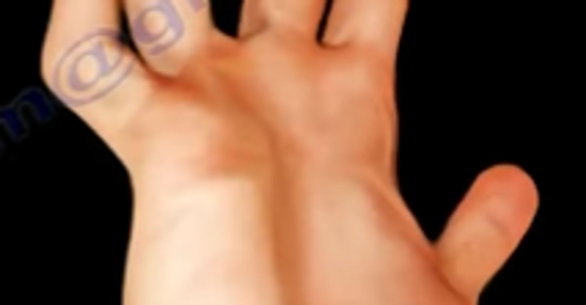 Ulnar Claw Hand Huffpost